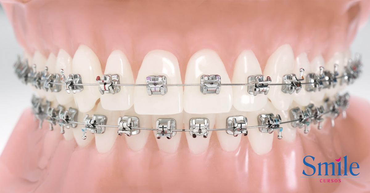 2c65b9c81ee1d Aparelho autoligado  preço, tratamento e vantagens - Smile - Cursos ...
