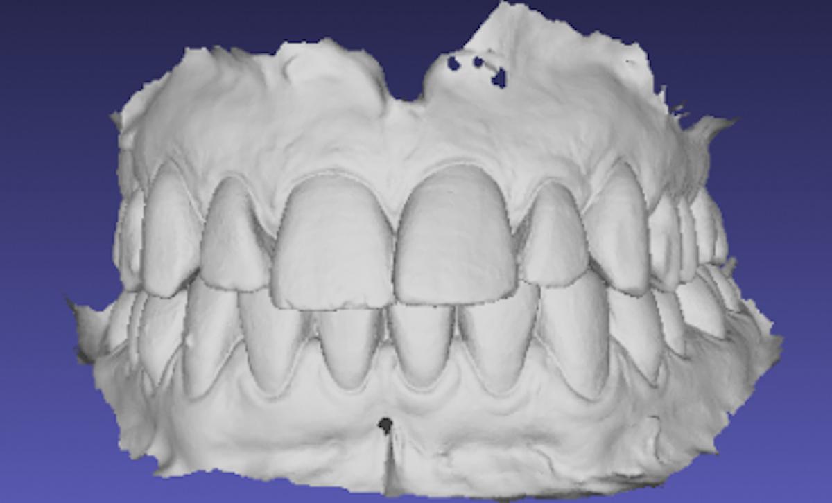 Modelos digitais na ortodontia