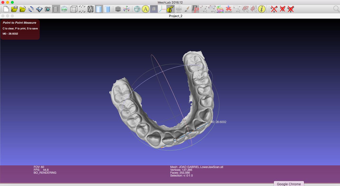 Softwares para planejamento virtual em Odontologia