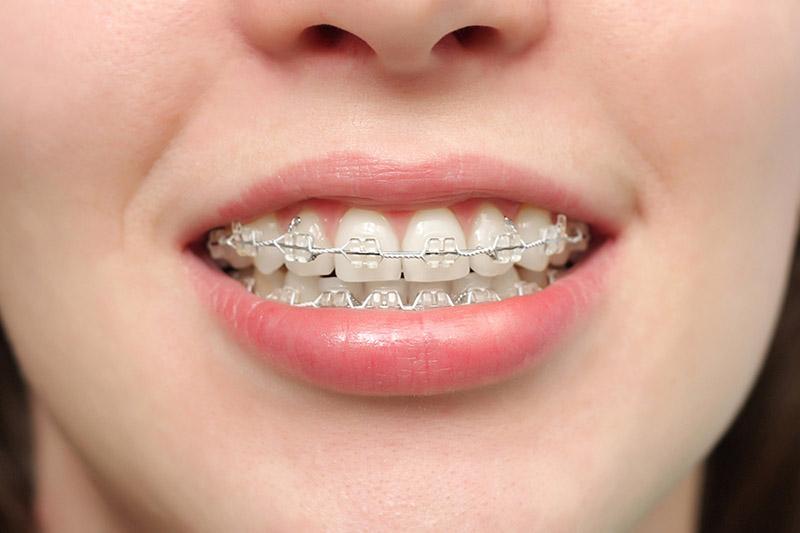 Quanto tempo demora para alinhar os dentes - Aparelho fixo
