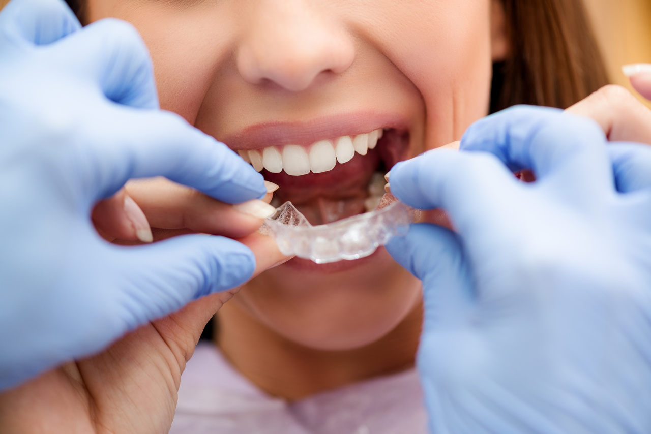 Ortodontista Além dos Braquetes